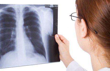 КТ органів грудної клітки